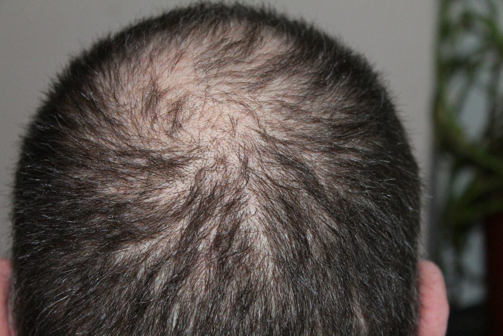 האם כדאי לבצע- השתלת שיער לפני החתונה
